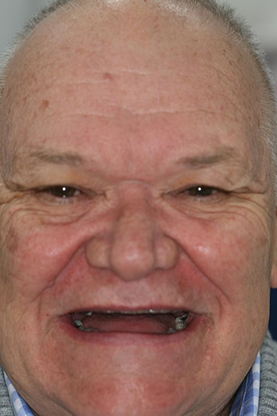 Full face view of a males smile before dentures