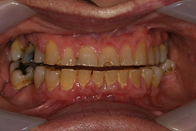 Decayed, damaged smile of patient of Dr. Lee