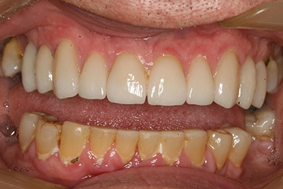 Before closeup view of a patient smile