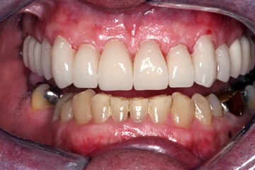 Closeup view of a smile after a cosmetic dental procedure