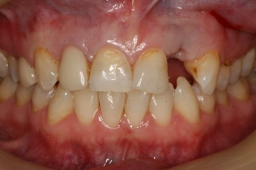 Closeup view of a smile before dental work