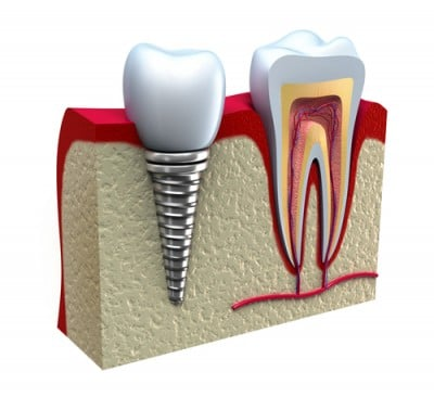 picture-of-dental-implants