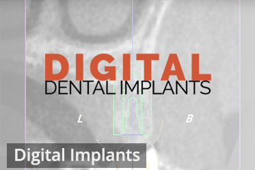 Digital Dental Implants