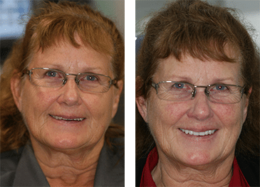 Before & After comparison smiles of a FOY Dentures patient