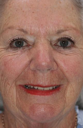 before treatment full face smile