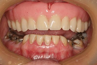 before treatment closeup smile
