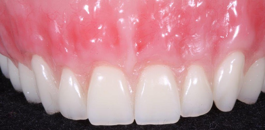 DFOY denture