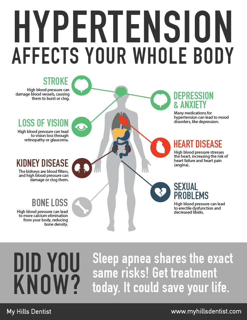 A infographic about the relationship between Hypertension and Sleep Apnea, get more information at My Hills Dentist in Sydney, Australia