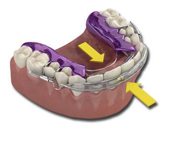 Straighten Those Teeth — Fast!