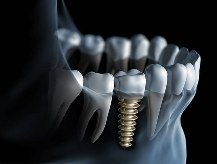 Implants Still an Option Years after Tooth Loss