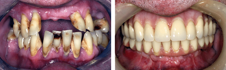 Before & After comparison smiles of a patient's BPS dentures