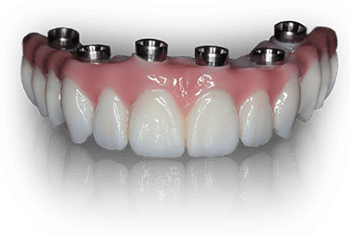 Prettau Implant Bridges made with zirconia for a durable natural look
