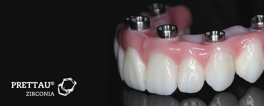 Long lasting Prettau Implant Bridges