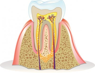 Sydney root canal therapy