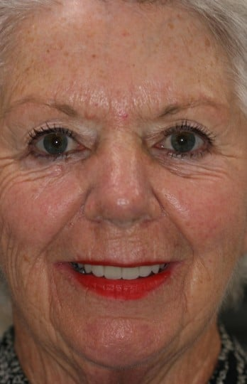 Full face view of a female after FOY Dentures