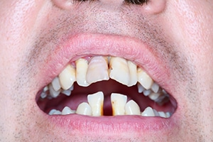 Close up of a man with crooked teeth and receding gums.