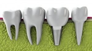 Model of molars and a dental implant in the jaw bone