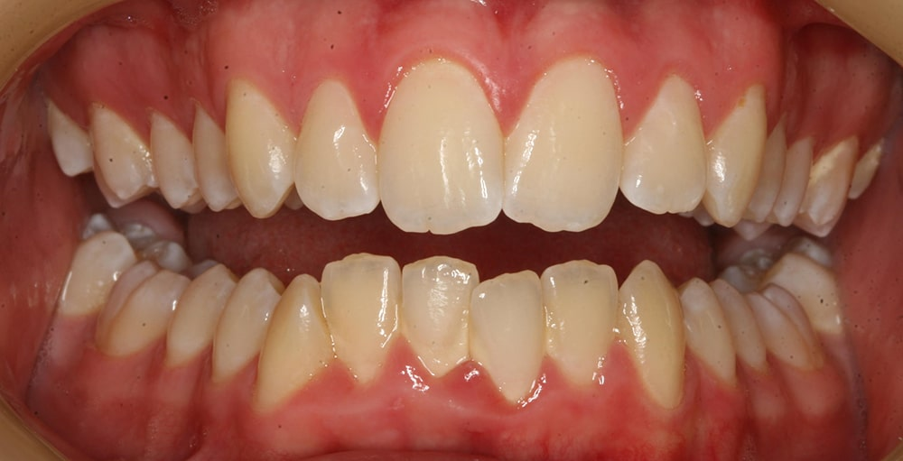 Closeup view of teeth before a dental treatment with Dr. Lee
