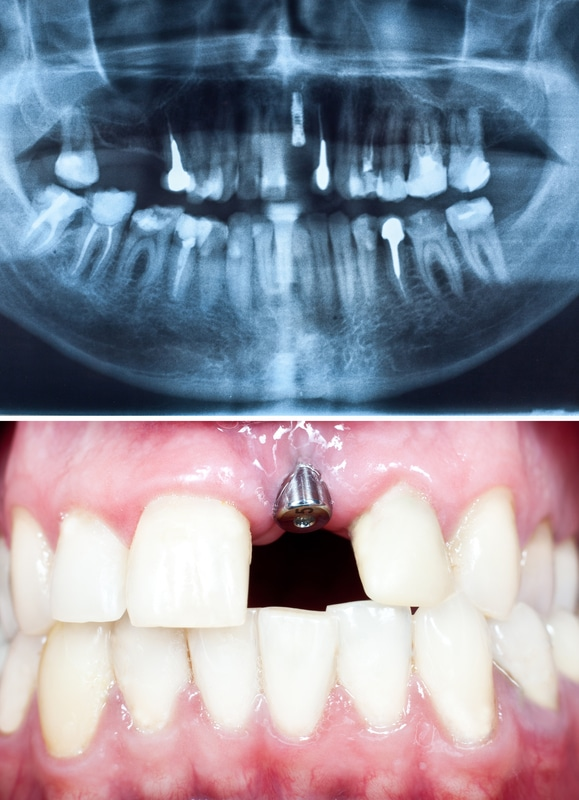 implant-in-oral-cavity
